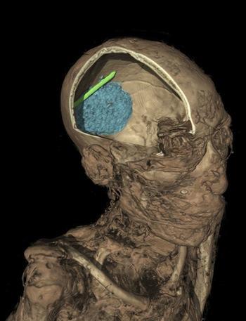 Linen Man skull